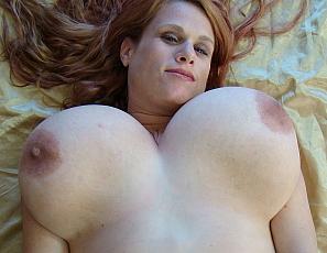 Macromastia Gigantomastia Lactating Breast - IgFAP